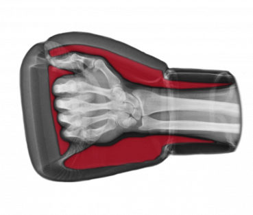 An x-ray showing the dead space inside a regular boxing glove between the hand and the glove