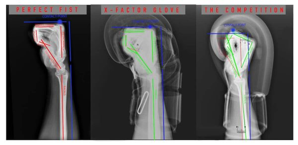 An x-ray of how the ONX boxing gloves position the fist correctly for natural support